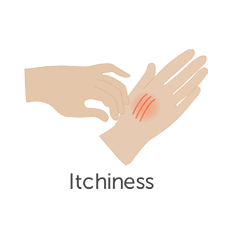 Itchiness